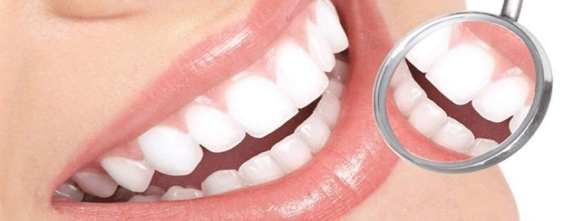dental-and-teeth-cleaning-services